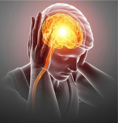 migraine_definitation